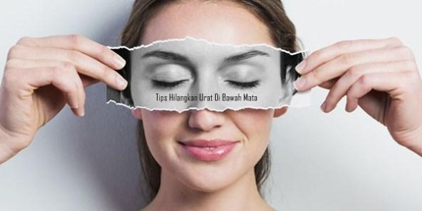 Cara Menghilangkan Urat Di Bawah Mata