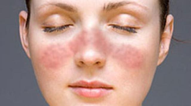 Ramuan Herbal Untuk Penyakit Lupus