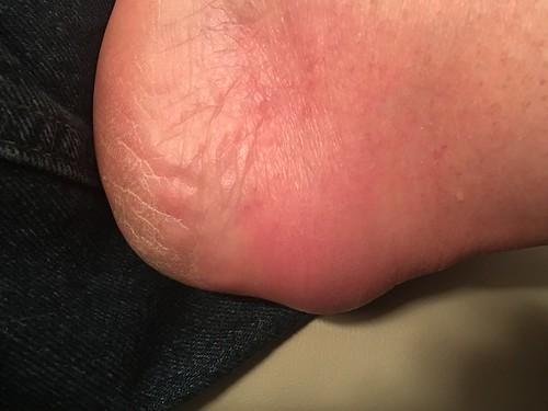 Swollen Heel