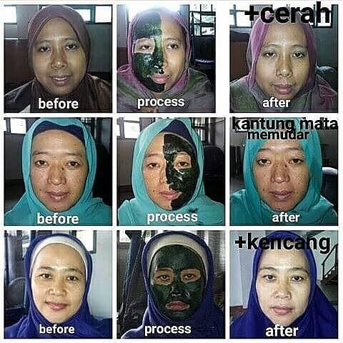 BUKTI NYATA SPIRULINA - Obat Iritasi Kulit Wajah Karena Kosmetik