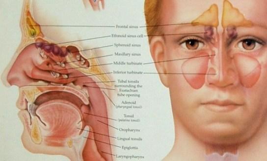 Obat Generik Untuk Penyakit Sinusitis