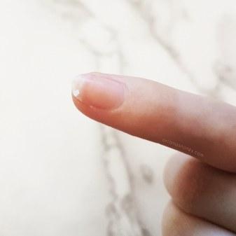 chipped nails keratin cure