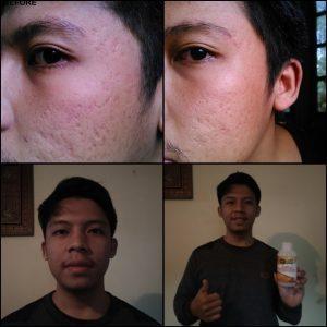 Obat Jerawat Bruntusan Paling Ampuh