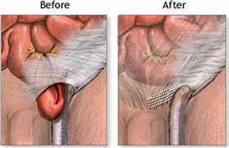 Solusi Untuk Mengobati Hernia Tanpa Oprasi 100% Alami