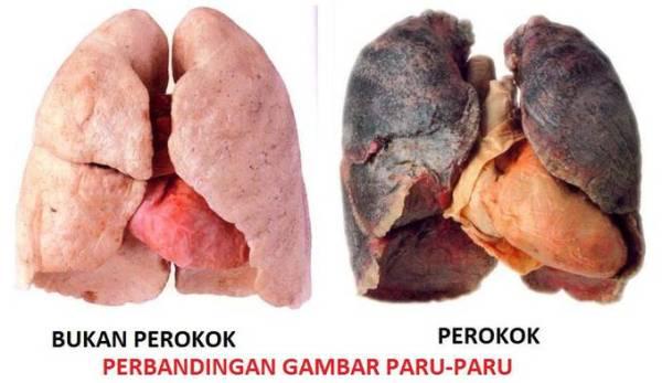 Obat Pembersih Paru Paru Perokok Yang Dijual Di Apotik