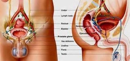 Obat Herbal Untuk Mengobati Pembesaran Prostat Tanpa Operasi