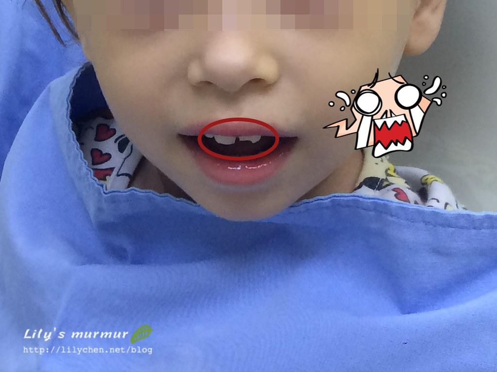 剛摔斷牙拍的,右邊是缺角的,左邊後來內出血變灰色了。