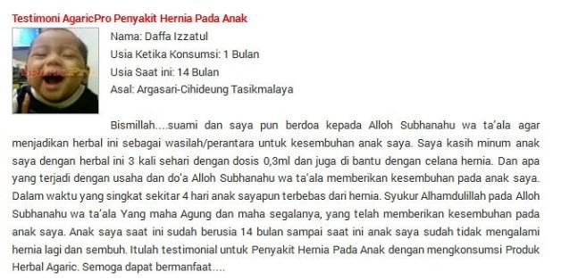Obat Hernia Umbilikalis