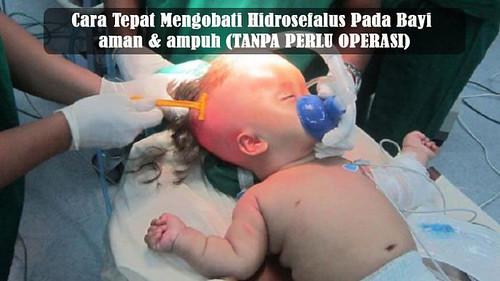 Cara Mengobati Hidrosefalus Pada Bayi