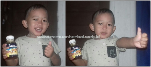 Obat Batuk Pilek Anak Di Apotik