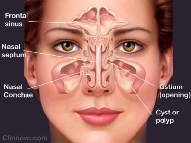 Obat Generik Untuk Sinusitis Paling Ampuh