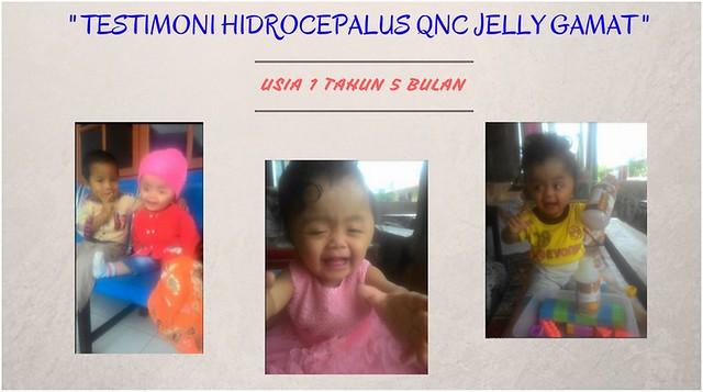 Kisah Nyata Penderita Hidrosefalus Yang Sembuh Setelah Mengkonsumsi QnC Jelly Gamat