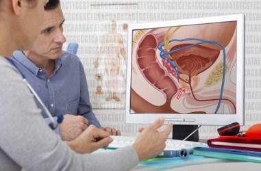 Tuntaskan Prostat Dengan Cepat 100% Alami dan Berkhasiat