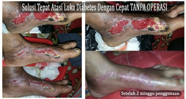Obat Gangren Diabetes Melitus
