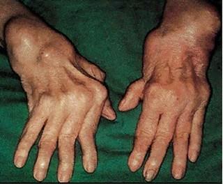 Jari Tangan Kaku Dan Bengkak