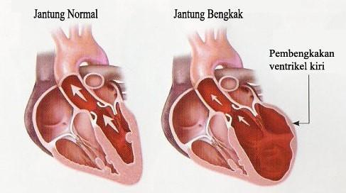 Obat Jantung Bengkak Di Apotik