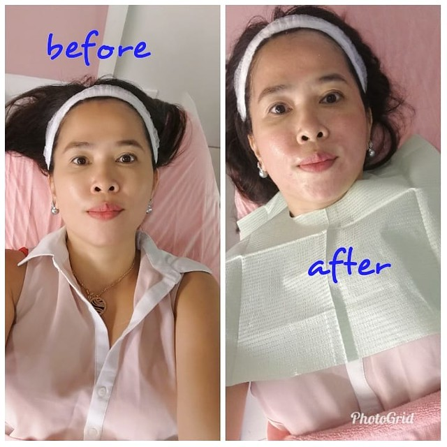 Biotulin FNT Therapy at Flawless