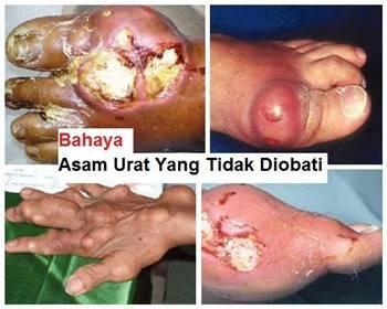 Bahaya asam urat