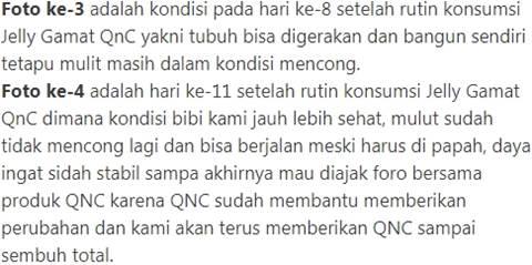 tesimoni penyakit strok dari para pasien pengguna QnC Jelly Gamat Emas