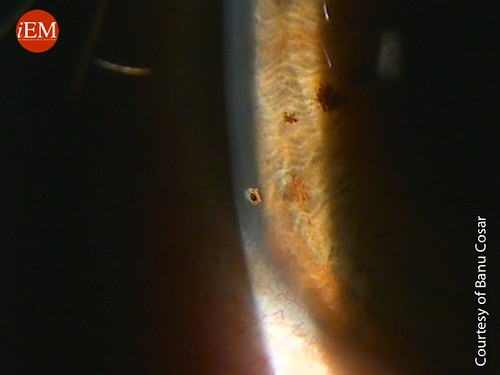 816 - Corneal foreign body