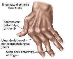 penyebab jari tangan kaku