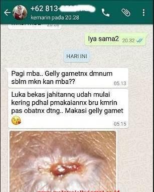 testi qnc jelly gamat sebagai obat oles