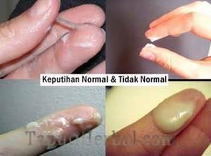 keputihan abnormal