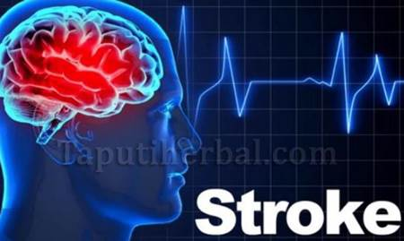 Obat Stroke Herbal QnC Jelly Gamat