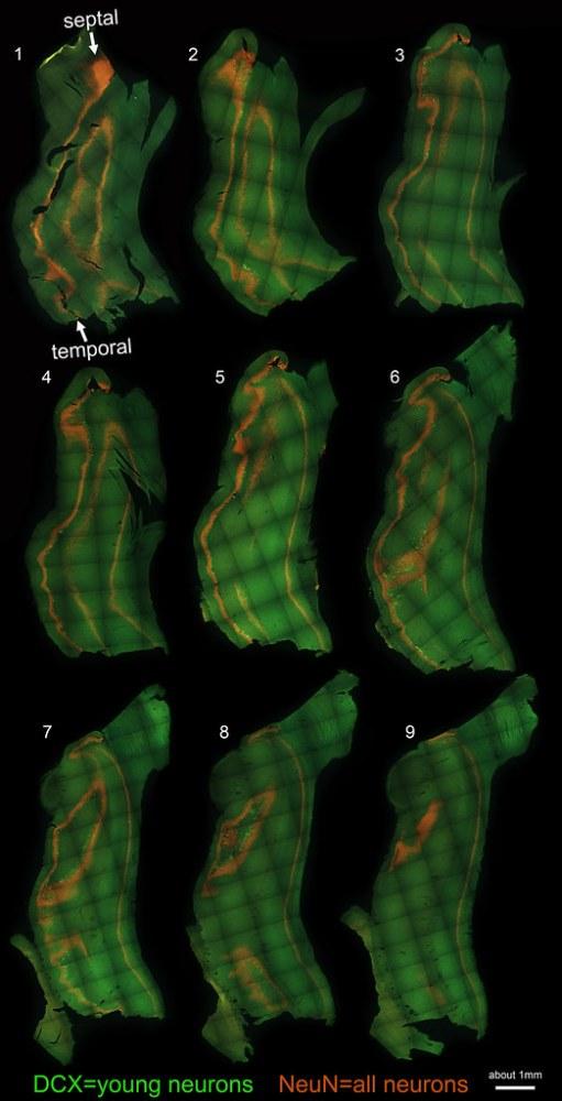 Dorsoventral vs. Septotemporal hippocampus (6/6)