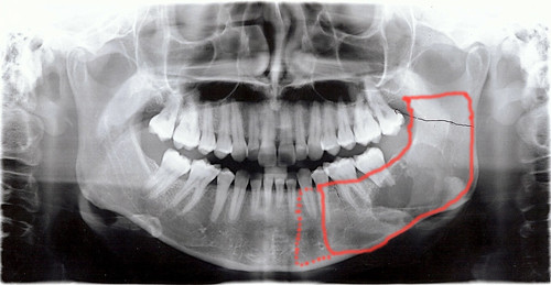 Dental x-ray showing likely resection