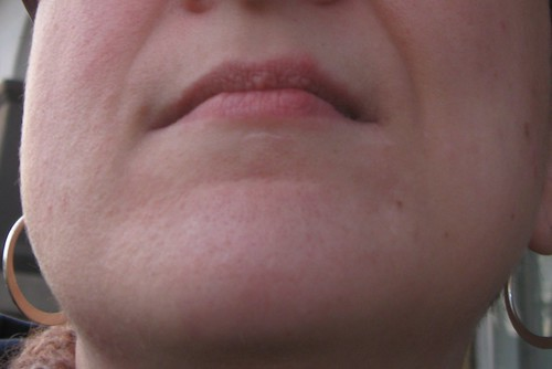 Lip scar
