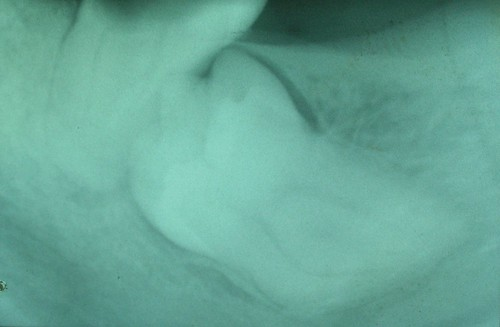 Tercer molar inferior retenido