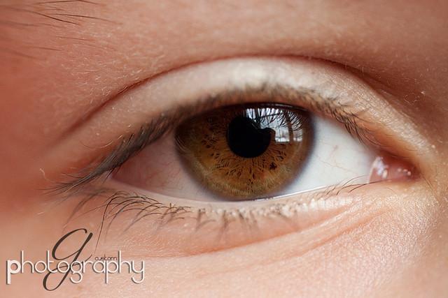 andrew's eye