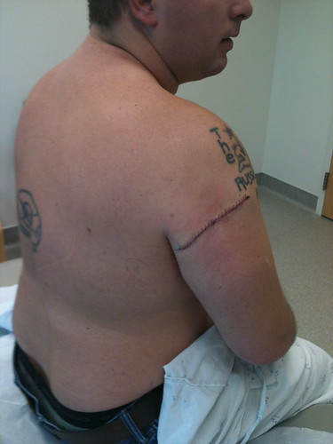 Skin Cancer Excision