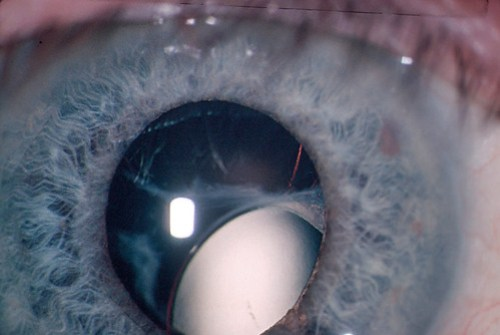 Dislocated lens after trauma.
