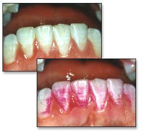 Placa dental con tinte revelador