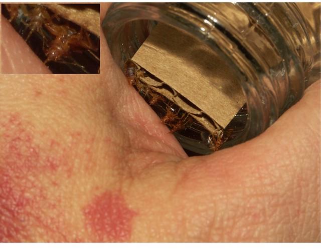 Bugs Skin