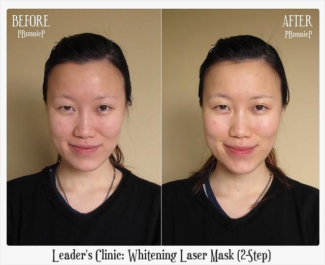 Leader's Clinic Whitening Laser Mask 03