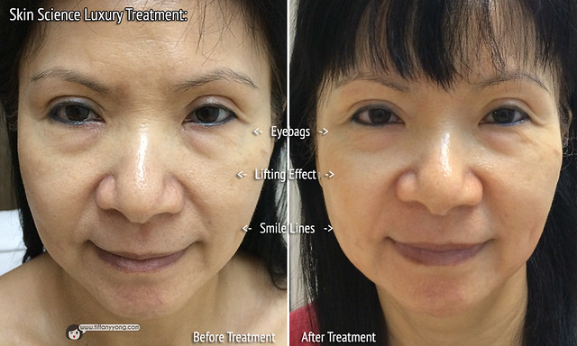 Skin Science Luxury Treatment Before After