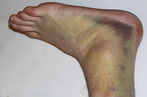 Severly Sprained Ankle
