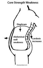 Lumbar Lordosis | Lower Back Pain | Core Stren...