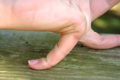 Hypermobile pinky finger