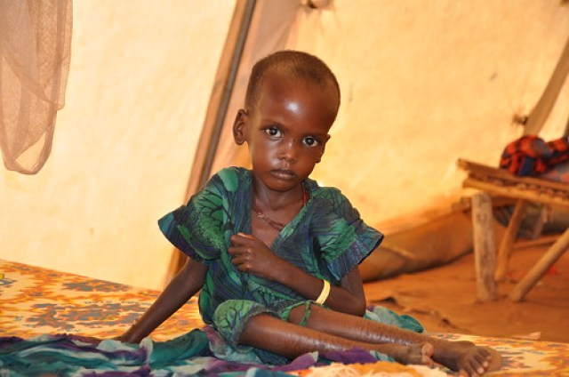 A malnourished child in an MSF treatment tent in Dolo Ado