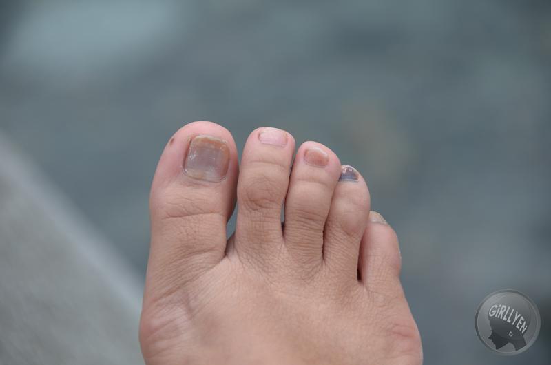 The injured nails