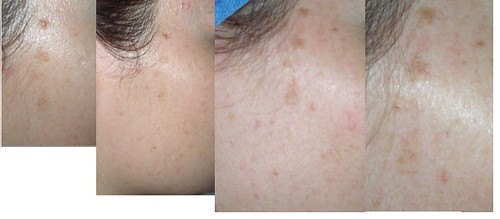 pigmentation_progress