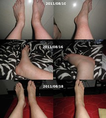 ankle RA evolution