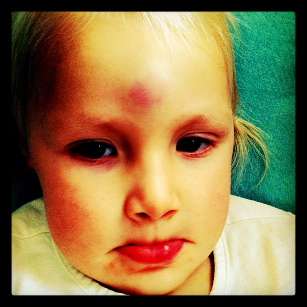 Battle wounds from this morning. She fell off a barstool and pulled it down on top of her. Goose egg and fat lip. Bummer.