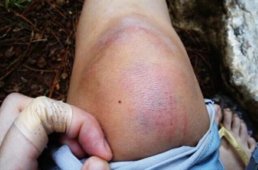 Bruised knee