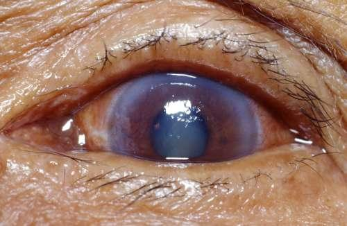 Neovascular glaucoma