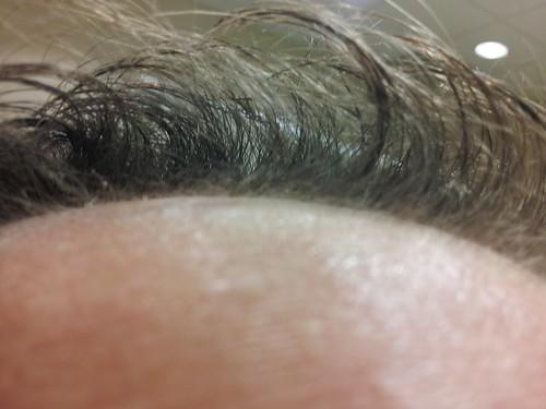 April 19th Scalp Closeup using ZX42